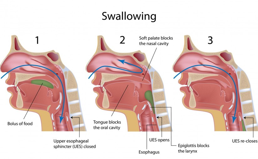 speech-language-pathology-dysphagia-swallowing-chart